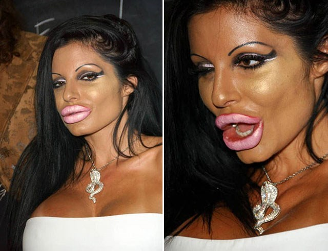 too much plastic surgery - Hair