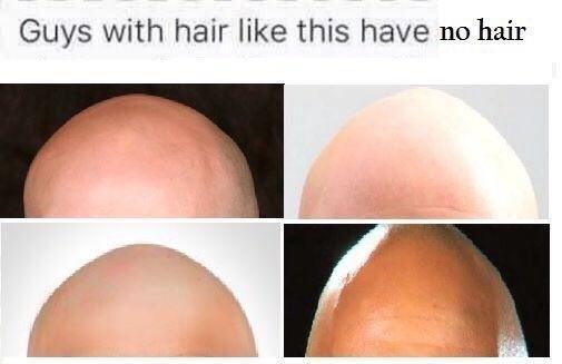 anti meme about bald people having no hair