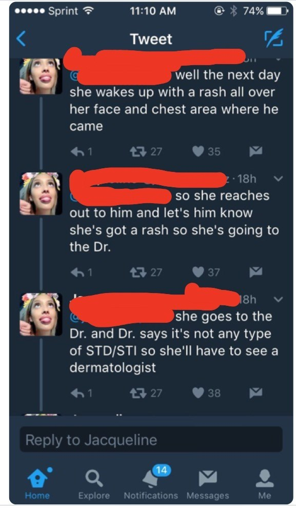 Text - Sprint 11:10 AM 74% Tweet well the next day she wakes up with a rash all over her face and chest area where he came 1 27 35 18h so she reaches out to him and let's him know she's got a rash so she's going to the Dr. t7 27 1 37 18h she goes to the Dr. and Dr. says it's not any type of STD/STI so she'll have to see a dermatologist t27 38 Reply to Jacqueline 14 Explore Notifications Messages Me Home