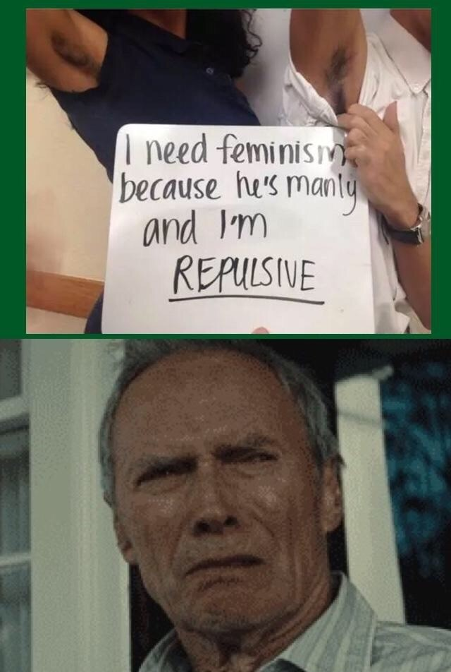 Forehead - need feminism because he's manty and Im REPULSIVE