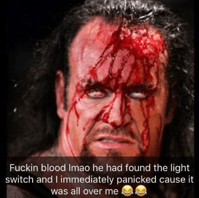 Forehead - Fuckin blood Imao he had found the light switch and I immediately panicked cause it was all over me