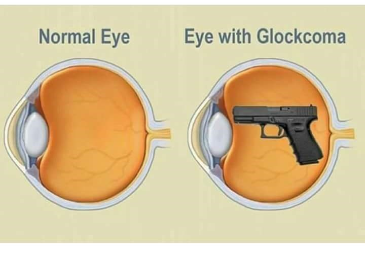 Illustration of an eye with Glaucoma as a regular eye that has a glock pistol in it