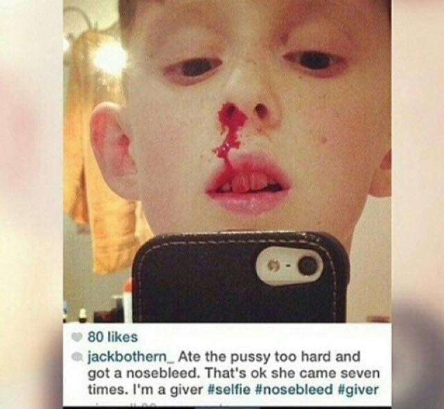 cringey pic of kid with a nosebleed claiming he got it from giving oral sex