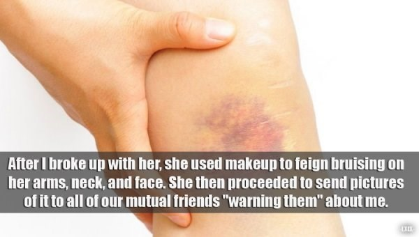"Skin - After I broke up with her, she used makeup to feign bruising on her arms, neck, and face. She then proceeded to send pictures of it to all of our mutual friends ""warning them"" about me. EXEX"