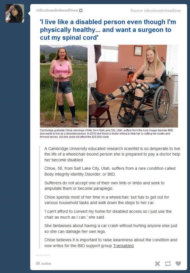Vehicle - ridiculousdmheadlines Source: ridiculousdmheadlines Ilive like a disabled person even though I'm physically healthy... and want a surgeon to cut my spinal cord' Cambridge graduate Chloe Jennings-White, from Salt Lake City, Utah, suffers from the body image disorder BilID and wants to live as a disabled person. In 2010 she found a doctor willing to help her by cutting her sciatic and femoral nerves, but she could not afford the $25,000 costs A Cambridge University educated research scie