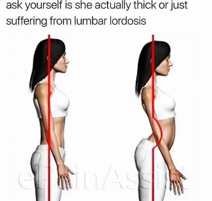 Shoulder - ask yourself is she actually thick or just suffering from lumbar lordosis hAs