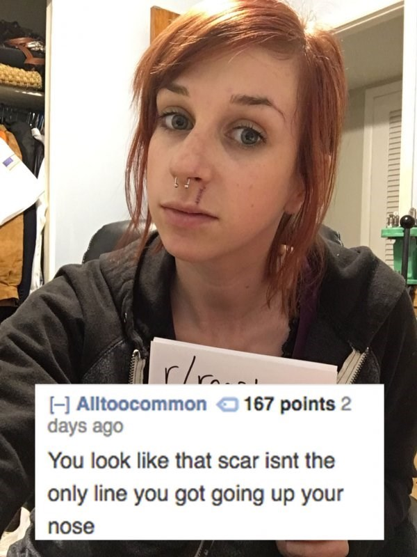 Hair - rln H Alltoocommon 167 points 2 days ago You look like that scar isnt the only line you got going up your nose