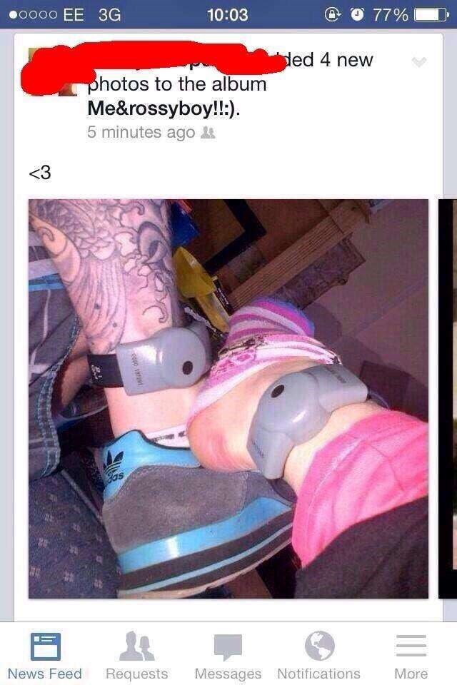 Facebook post of matching ankle bracelets.