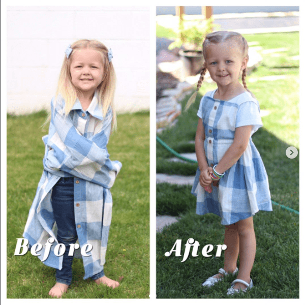 Photograph - Before After