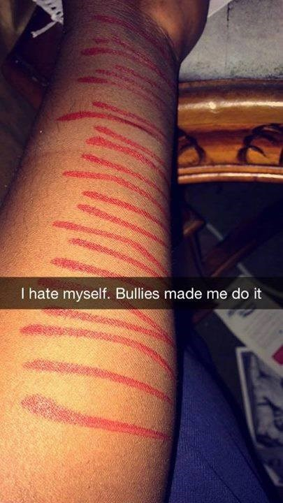 Snapchat of fake slash marks made with a marker an caption saying the bullies made him do it.
