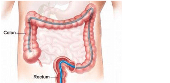 Snake colon Maximum Anal