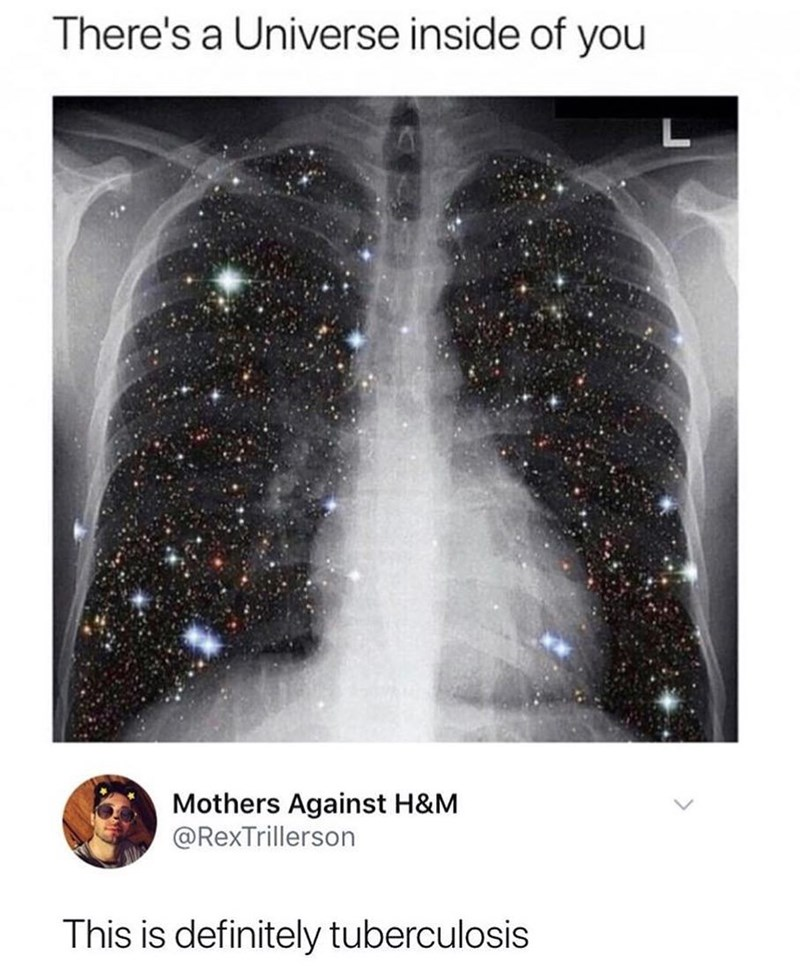 Funny meme about universe inside us, tuberculosis.