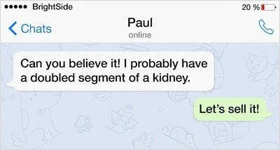 Text - BrightSide 20 %) Paul Chats online Can you believe it! I probably have a doubled segment of a kidney. Let's sell it! 468