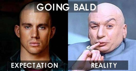 Face - GOING BALD EXPECTATION REALITY