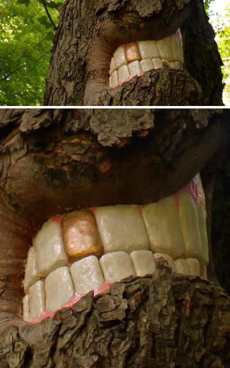 teeth - Trunk