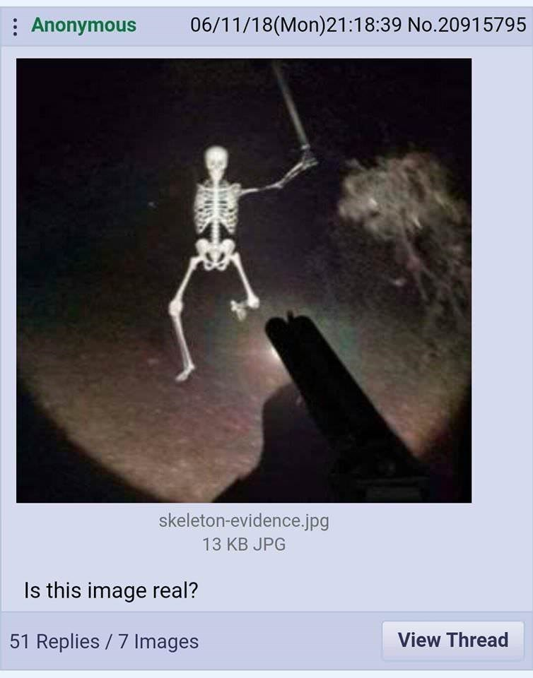 Text - 06/11/18(Mon)21:18:39 No.20915795 Anonymous skeleton-evidence.jpg 13 KB JPG Is this image real? 51 Replies 7 Images View Thread