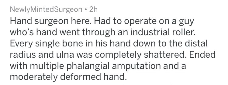 Text - NewlyMintedSurgeon Hand surgeon here. Had to operate on a guy who's hand went through an industrial roller. Every single bone in his hand down to the distal radius and ulna was completely shattered. Ended with multiple phalangial amputation and a moderately deformed hand.