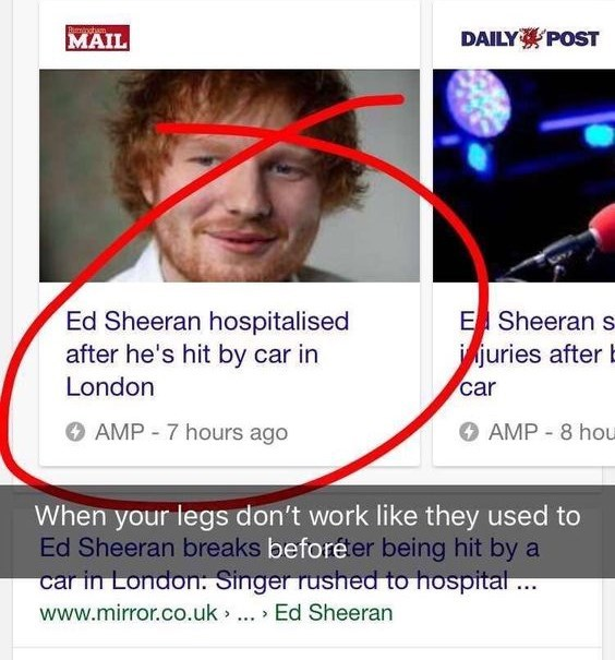 """Headline that reads, """"Ed Sheeran hospitalized after he's hit by car in London"""" with the caption, """"When your legs don't work like they used to before"""""""