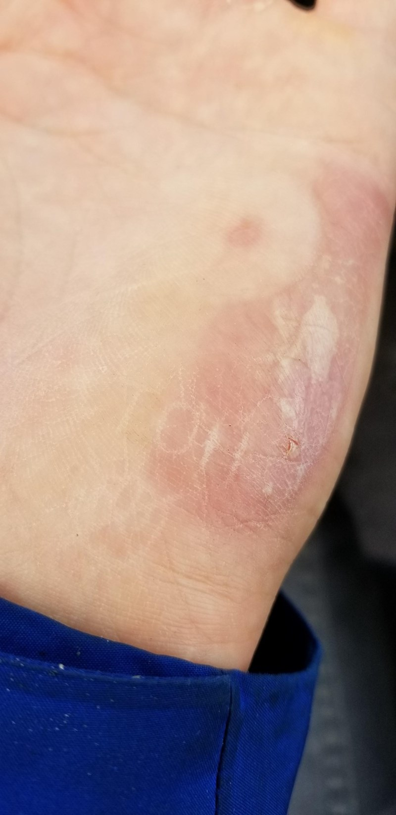 """picture of person's hand after touching something hot and getting the word """"hot"""" burned on the skin"""