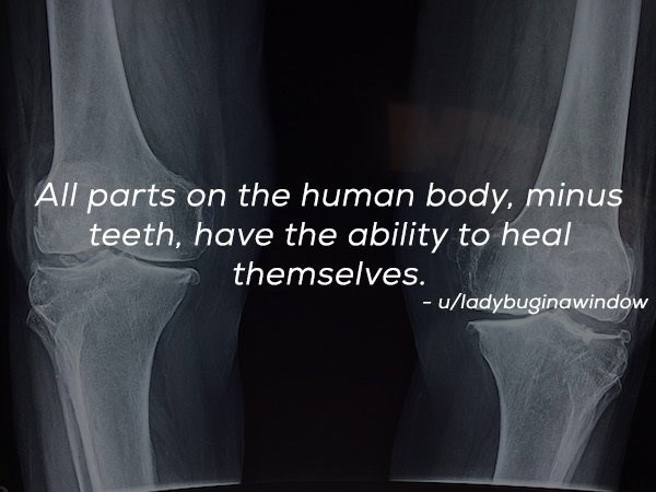 Radiology - All parts on the human body. minus teeth, have the ability to heal themselves. - u/ladybuginawindow