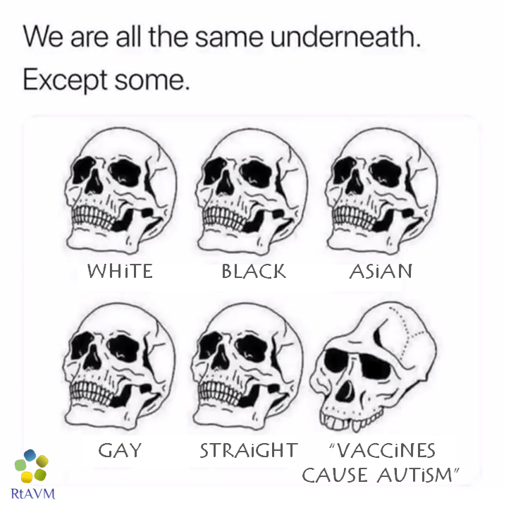 are-all-same-underneath-except-some-whit