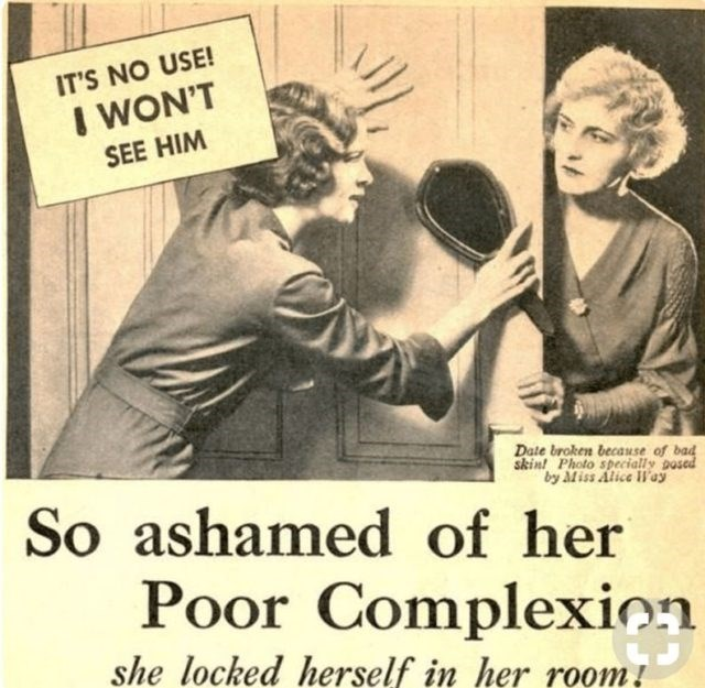 Vintage advertisement - IT'S NO USE! I WON'T SEE HIM Date broken becasuse of bad skint Photo specially posed by Miss Alice Woy So ashamed of her Poor Complexion she locked herself in her room