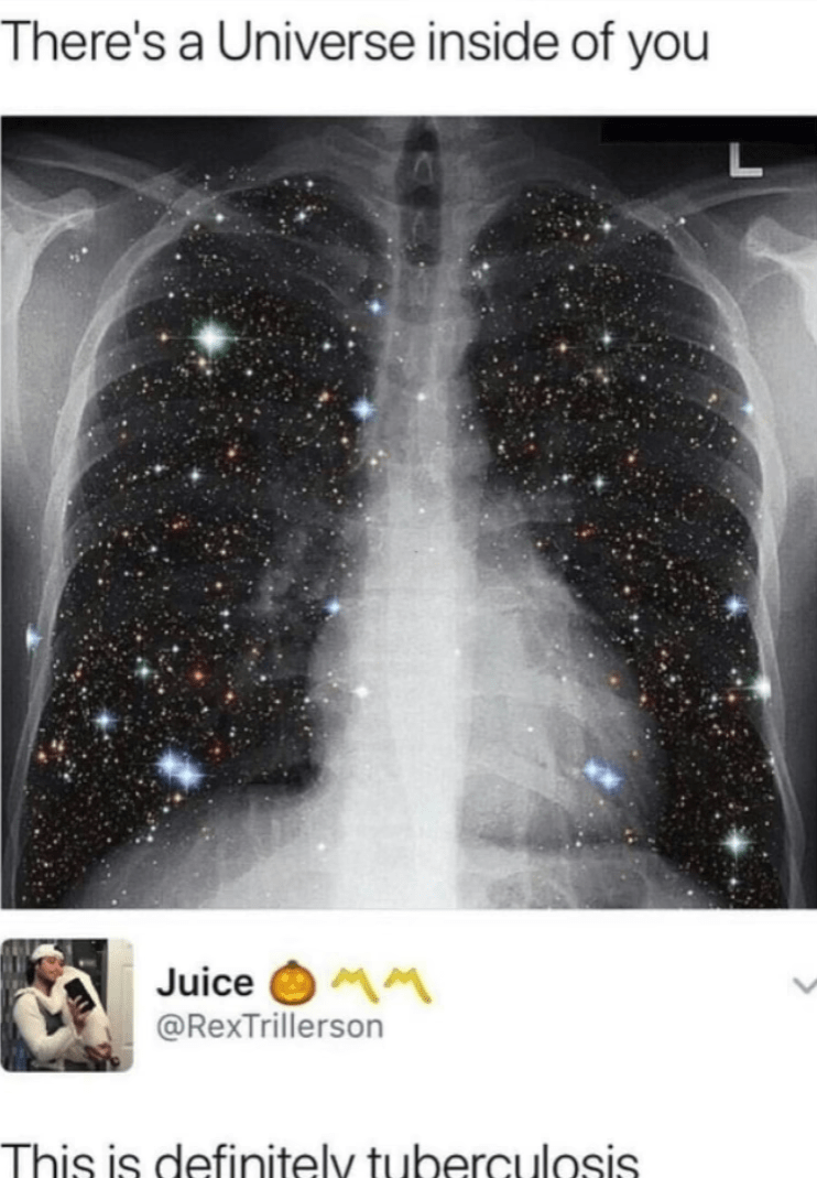 "Caption that reads, ""There's a universe inside of you"" above a photo of an x-ray of someone's lungs that looks like it has stars inside of it; someone comments below, ""This is definitely tuberculosis"""