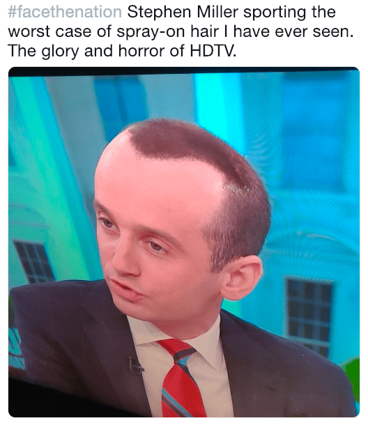 """Caption that reads, """"Stephen Miller sporting the worst case of spray-on hair I have ever seen. The glory and horror of HDTV"""" above a pic of Stephen Miller with a distorted head"""