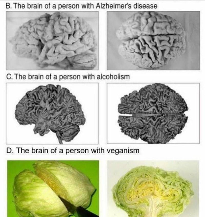 Funny meme about vegan brains.