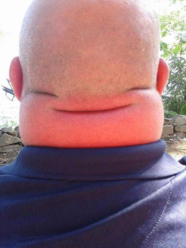 creepy pic of the back of a mans head that looks like a pair of eyes and a smile