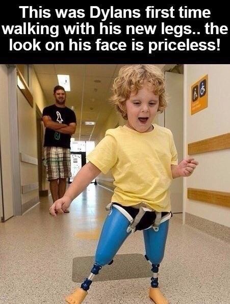 "Caption that reads, ""This was Dylan's first time walking with his new legs...the look on his face is priceless!"" above a pic of a toddler walking with mechanical legs"