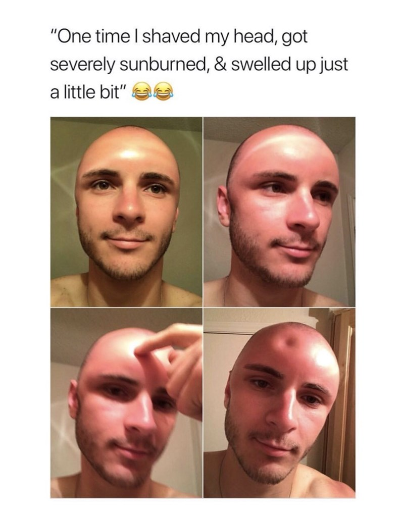 hilarious meme of guy with swollen indented forehead