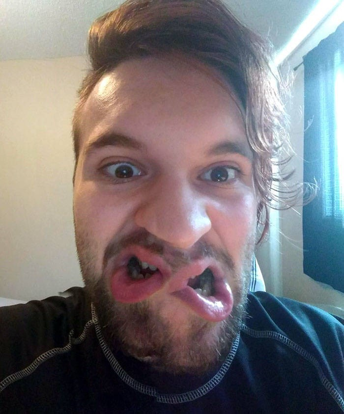 cursed image - infinity symbol with mouth