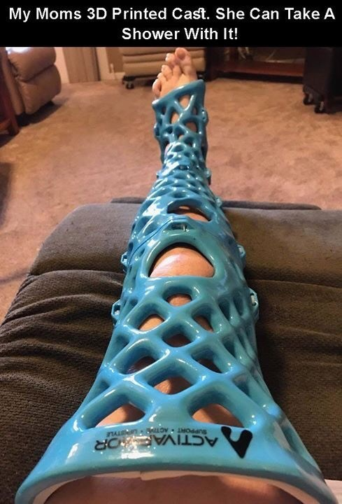 creative twist - Turquoise - My Moms 3D Printed Cast. She Can Take A Shower With It! aTL n LLO Rdans