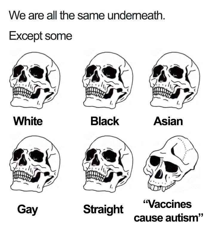 """Bone - We are all the same underneath. Except some Asian White Black """"Vaccines Gay Straight cause autism"""""""