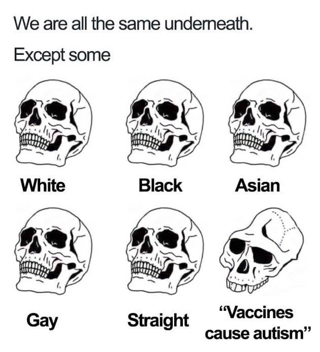 """drawings of skulls all the same except one We are all the same underneath. Except some White Black Asian """"Vaccines Gay Straight cause autism"""""""