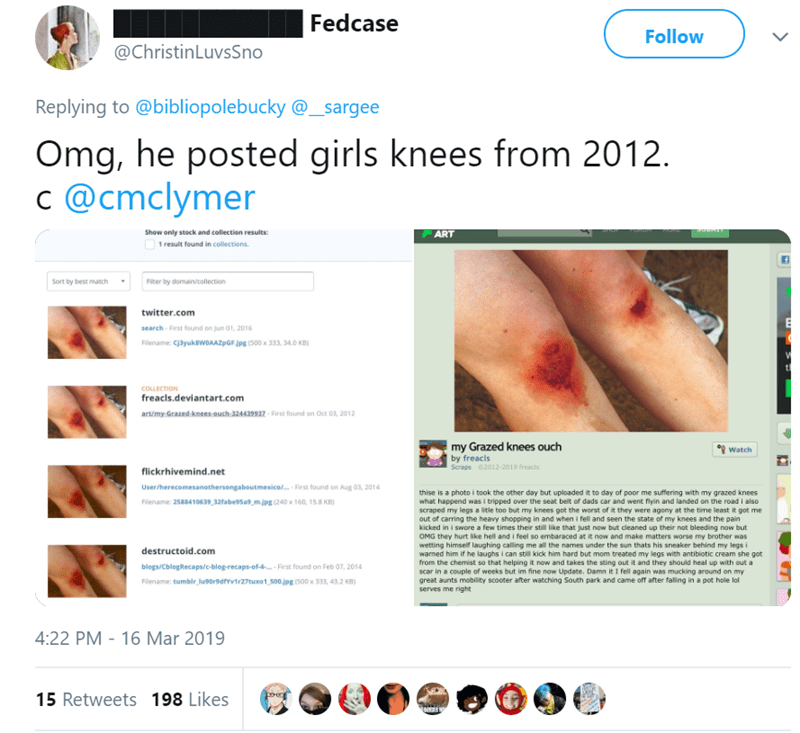 Text - |Fedcase Follow @ChristinLuvsSno Replying to @bibliopolebucky@_sargee Omg, he posted girls knees from 2012 @cmclymer ART Show only stock and collection results 1 result found in collections Sort by best match Fiter by domain/collection twitter.com search First found on jun 01, 2016 Filename: c3yukawoAAZpGFjpg (500 x 333, 34.0 KB) COLLECTION freacls.deviantart.com art/my Grazed knees ouch 324439932 First found on Oct 03, 2012 my Grazed knees ouch by freacls Scraps 2012-2019 freads Watch fl