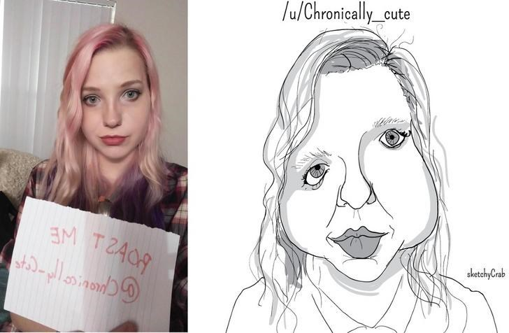 pic of girl with asymmetrical eyes next to exaggerated cartoon of her
