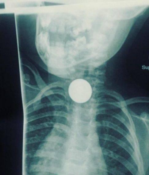 X-ray - Su