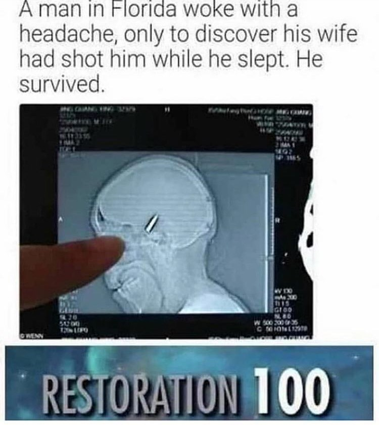 Medical imaging - A man in Florida woke with a headache, only to discover his wife had shot him while he slept. He survived. 200 GLoo 70 S0.00 W 00 200 35 CO02 wa.cH OWENN RESTORATION 100