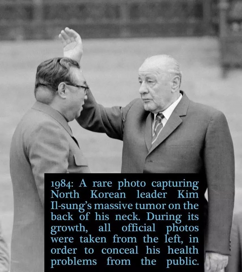 Photograph - 1984: A rare photo capturing North Korean leader Kim Il-sung's massive tumor on the back of his neck. During its growth, all official photos were taken from the left, in order to conceal his health problems from the public.
