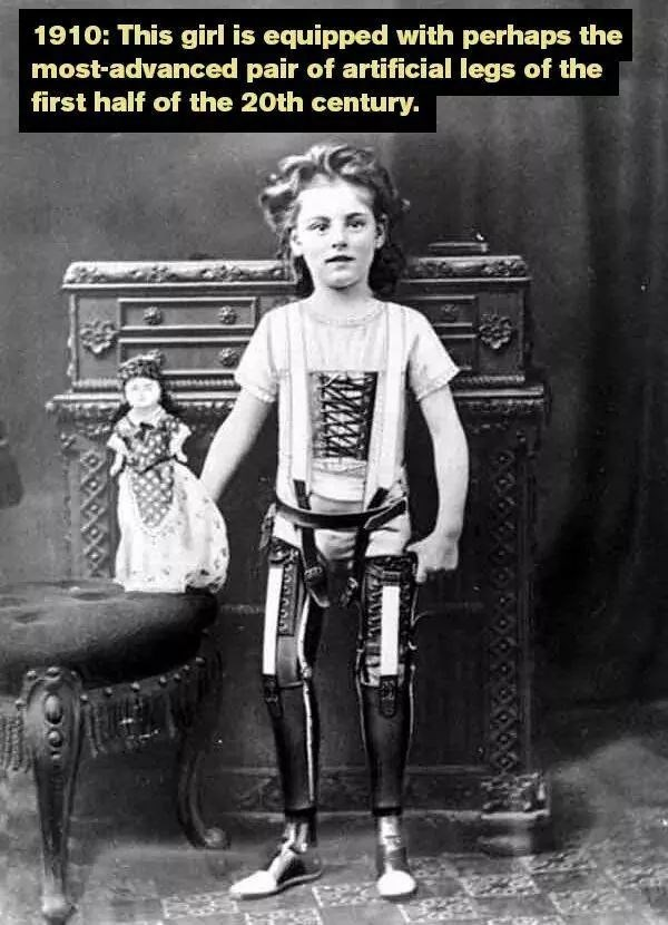 1910: This girl is equipped with perhaps the most-advanced pair of artificial legs of the first half of the 20th century.