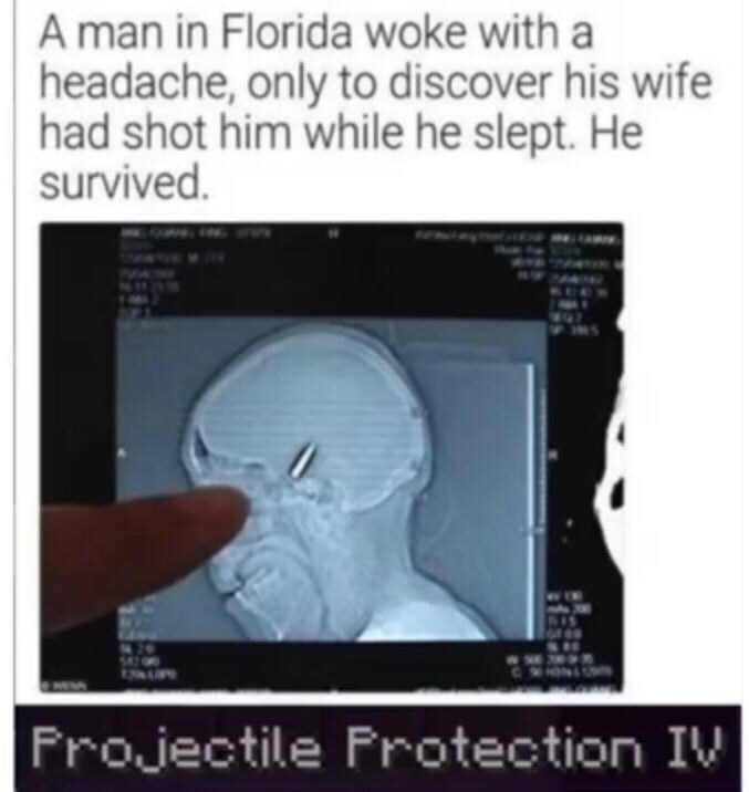 Memes - Medical imaging - A man in Florida woke with a headache, only to discover his wife had shot him while he slept. He survived CWON Frojectile Frotection IV
