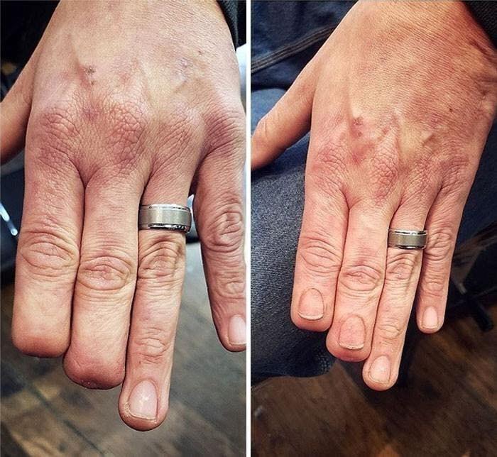 scar tattoo - Finger