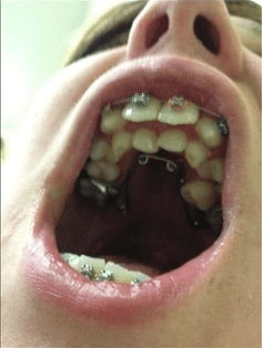 cursed images - Tooth