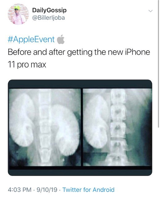 Radiology - DailyGossip @Billerljoba #AppleEvent Before and after getting the new iPhone 11 pro max 4:03 PM 9/10/19 Twitter for Android
