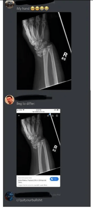 Radiography - My hand R RS Beg to differ R RS 124 PA r/quityourbullshit