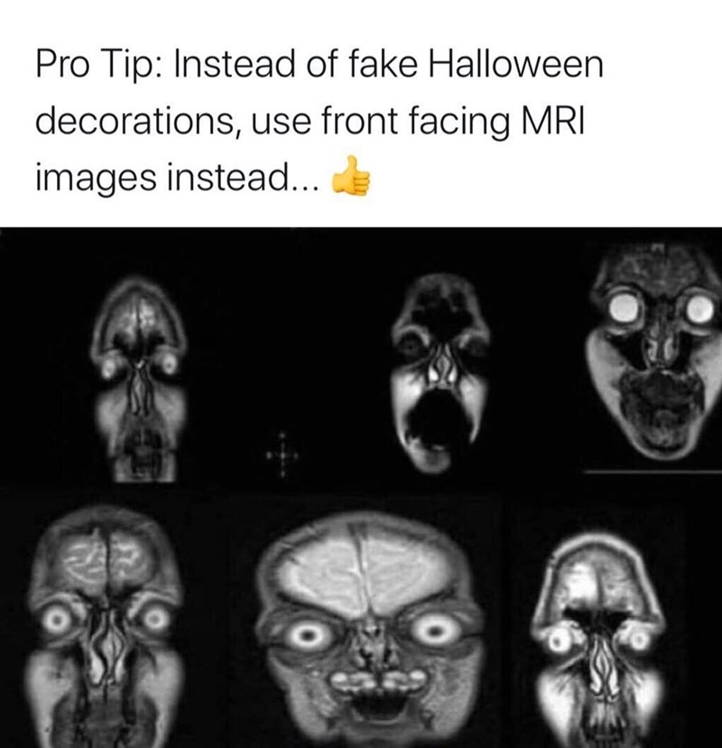 Face - Pro Tip: Instead of fake Halloween decorations, use front facing MRI images instead...