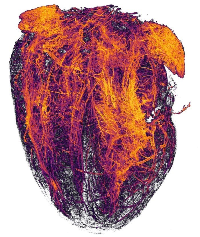 close up picture of the blood vessels of a mouse after it had heart attack