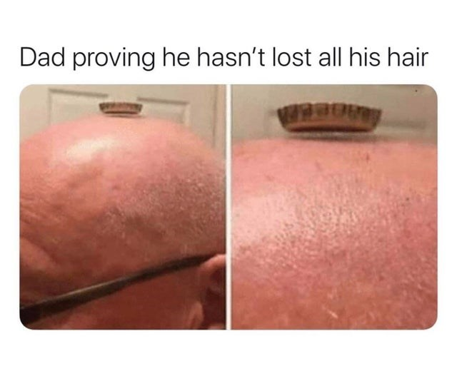 Skin - Dad proving he hasn't lost all his hair